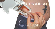 Female 3-Site Skin Fold Test: Suprailiac Caliper